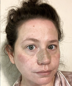 Photo of Erica after Sinus Surgery
